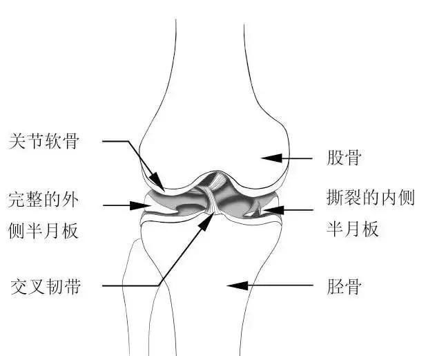 美國治療師分享的15個膝關節實用康復鍛煉方法(膝蓋受傷)