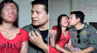 Pria Ini Tetap Setia, Meski Wajah Isterinya Hancur