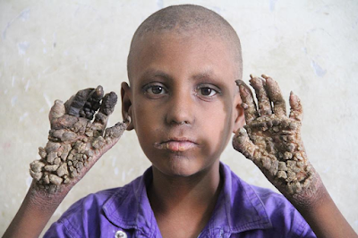 """Photos: 7-year-old boy suffers from rare skin disorder that is turning his hands and feet into """"trees"""""""