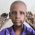 "Photos: 7-year-old boy suffers from rare skin disorder that is turning his hands and feet into ""trees"""