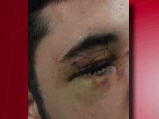 Namorado da filha do casal sofreu ferimentos graves no olho.  Foto: Reprodução/TV Bahia