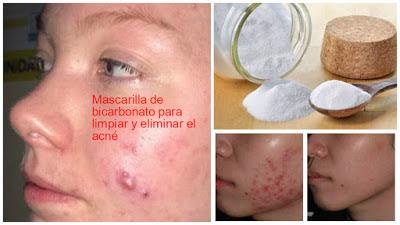 mascarilla-bicarbonato-eliminar-acne
