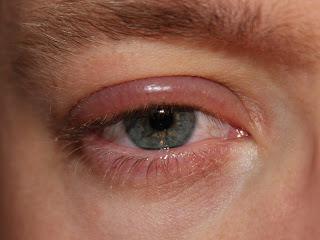 radang-kelopak-mata-blefaritis