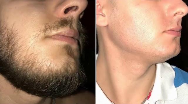 beard growth pills