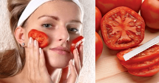 5 Simple Ways To Use Tomato For Acne & Pimples