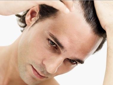 ¿Son los tratamientos contra la caída del cabello una estafa?