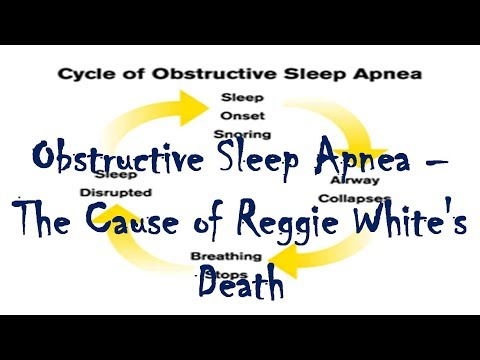 The Death of Reggie White - Sleep Apnea Can Kill You - Obstructive Sleep Apnea Risks