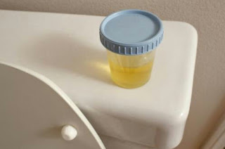 Urine test can reveal true biological age of the body