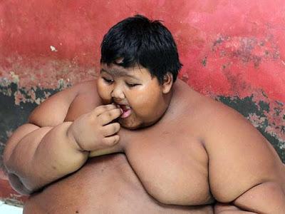 Το πιο παχύσαρκο παιδί στον κόσμο ζυγίζει 192 κιλά σε ηλικία 10 ετών