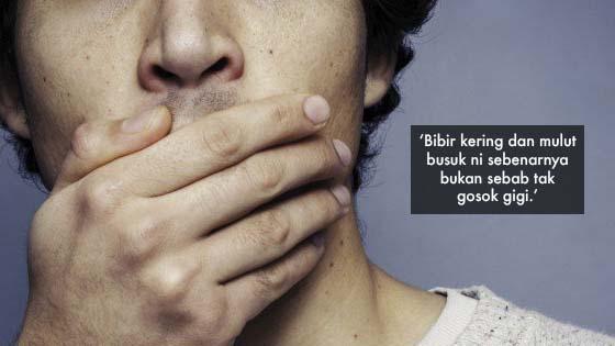 'Bibir Kering dan Mulut Berbau Bukan Sebab Tak Gosok Gigi'