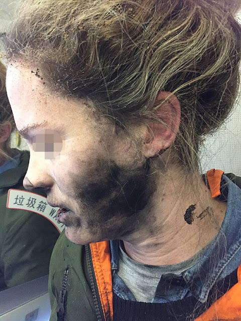 Passenger's headphones explode suffered burns to her face