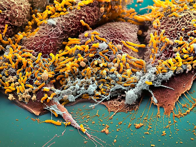 Microbial universe general informations about helicobacter pylori - Bacterie helicobacter pylori ...