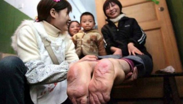 Berikut Lima Kasus Kelainan Genetika Paling Mengerikan Di Dunia