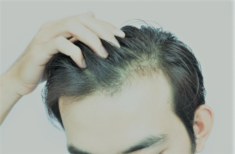 How to get rid of hair fall home remedies