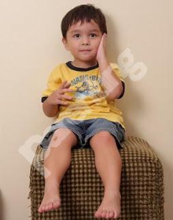 Obat Eksim Kering dikaki Untuk Anak Secara Alami