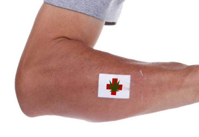 cannabis patch treats fibromyalgia