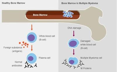 Kurkumin Pada Kunyit Dapat Turunkan Risiko Multiple Myeloma