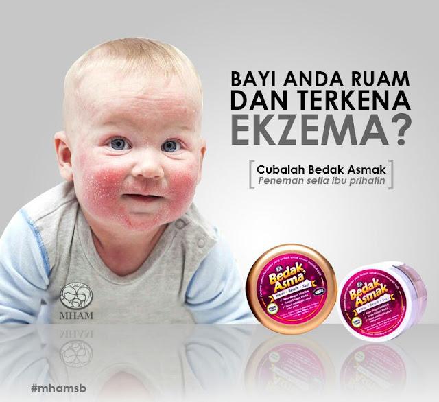 cara merawat penyakit kulit ekzema dan psoriasis