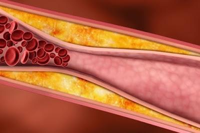 Beneficio da Banana Para o Colesterol: