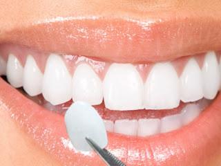 răng sứ xài được bao lâu phải làm lại