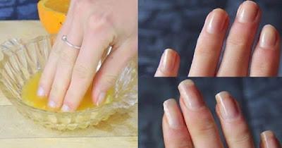 3 conseils pour faire pousser l'ongle rapidement
