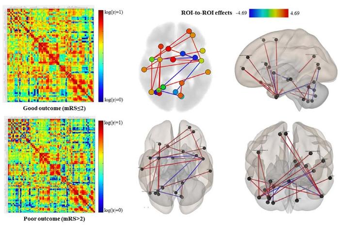 図:脳卒中患者の脳の機能的結合グラフ