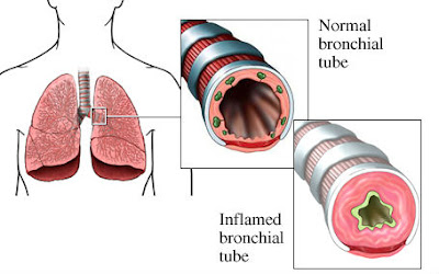 bronchitis treatment,acute bronchitis,chronic bronchitis,home remedies for bronchitis,how cure bronchitis,permanent treatment of bronchitis,asthma