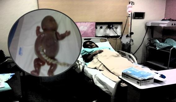 PELIK Sakit Nak Bersalin Dah 3 Minggu Tapi Bayi Tak Keluar. Segala TERJAWAB Bila Ustaz DEDAHKAN Sesuatu !!!