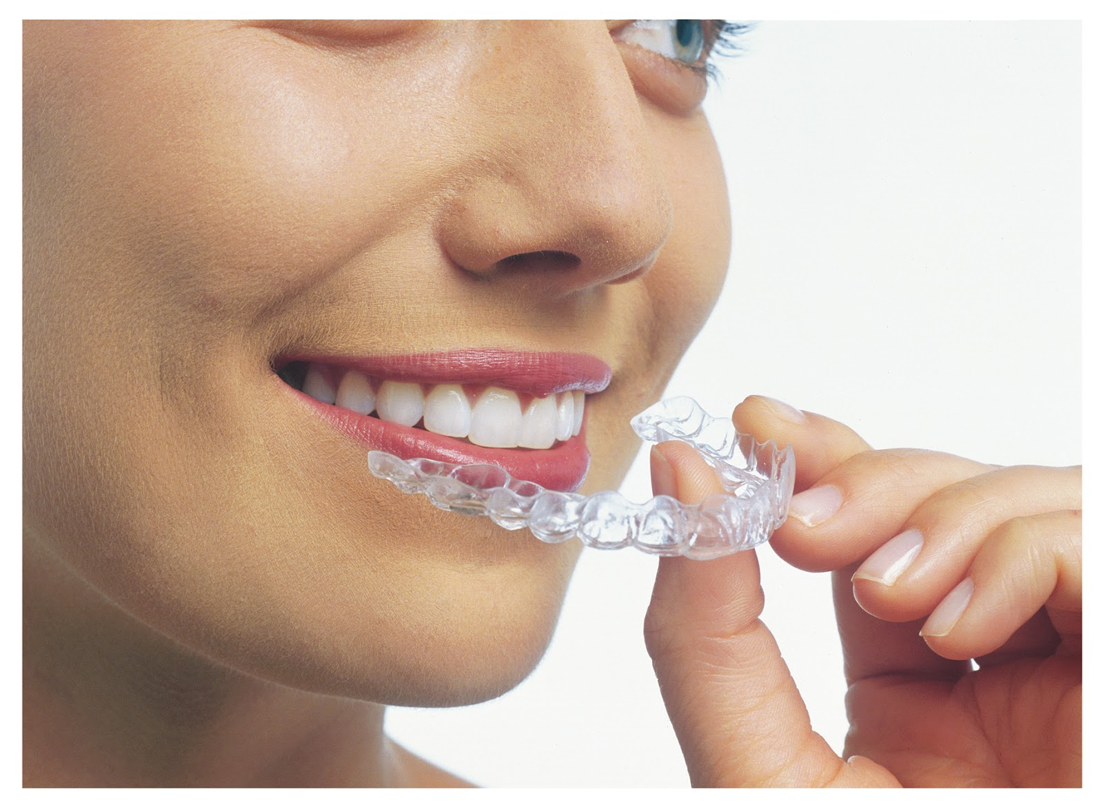 Rosen's Rants: Are You Too Old For Braces?