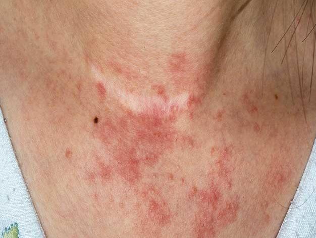Photos Of Eczema On Adults Neck  Treatment For Eczema -8959