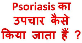 psoriasis-treatment-upchar-in-hindi
