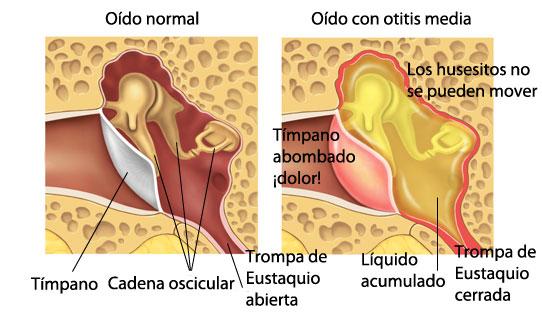 Infección del Oído Medio