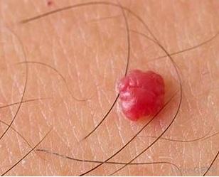 Comment supprimer un angiome cerise naturellement ?