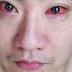 Este Hombre Fue Diagnosticado Con Cáncer En Ojos Por Hacer Algo Que Todos Hacemos En Las Noches