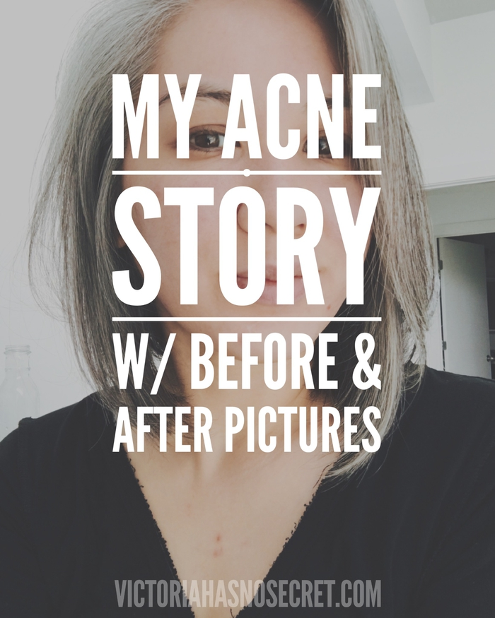 "My story of how I ""cured"" my hormonal adult acne (w/ before and after pics)"