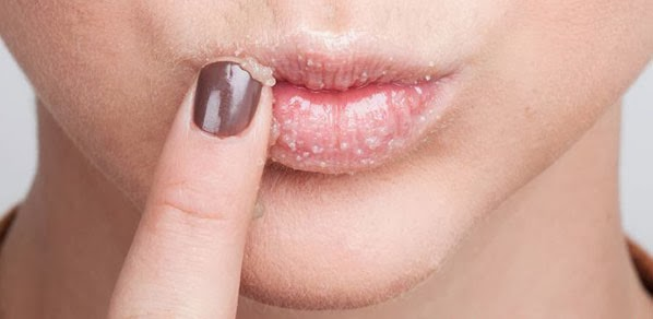 bibir kering pecah