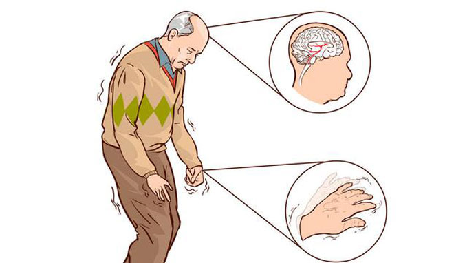 smartphone-diagnose-Parkinson-s-Disease