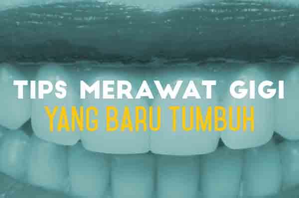 Kumpulan tips merawat gigi  balita dan bayi