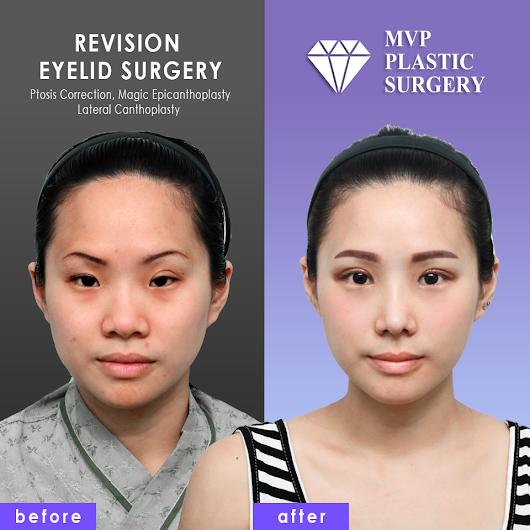 Best Revision Eyelid Surgery in Korea