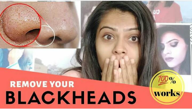 How to fight blackheads