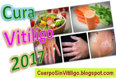 cura-natural-para-el-vitiligo-2017-tratamientos-remedios-caseros
