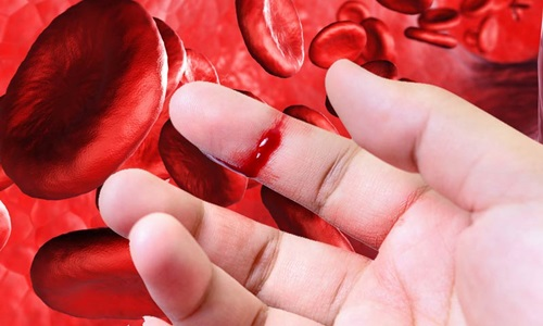Obat Gangguan Pembekuan Darah Herbal Manjur