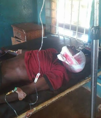 Suspected Fulani Herdsmen Attack Farmers, Cut-off Man's Hand (Graphic Photos)