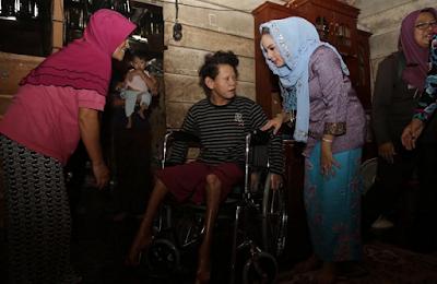 Yustin Ficardo Bantu Penderita Lepra di Way Kanan