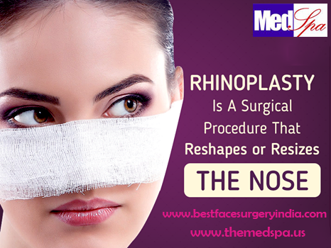 Why is Rhinoplasty Done?