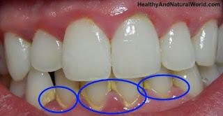 Cara Membersihkan Karang Gigi dengan Cepat dan Mudah