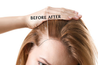 Things You Must Know While Considering Hair Transplant