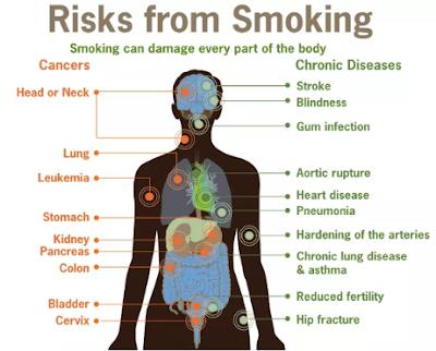 panyakit yang ditimbulkan karena merokok