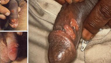 Cara Mengobati Penyakit Sifilis Secara Tradisional