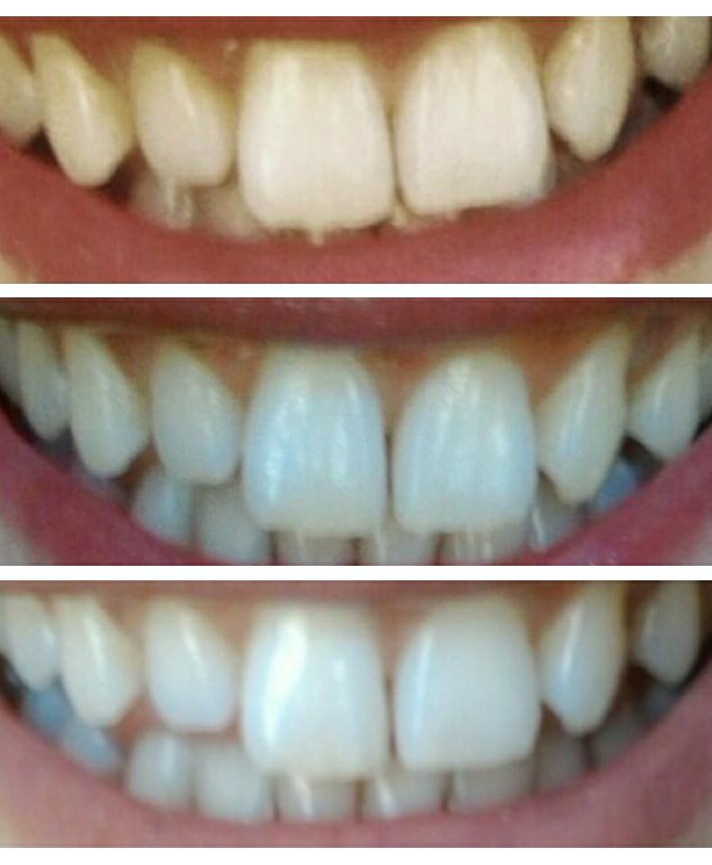 Mi Sbianco i Denti!